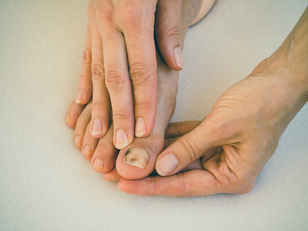 brzydkie paznokcie u stóp