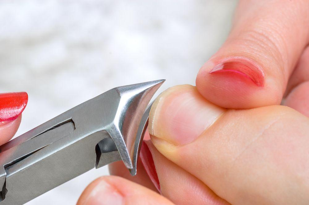 wrzynający się paznokieć