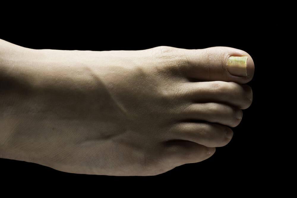 żółte paznokcie u stóp