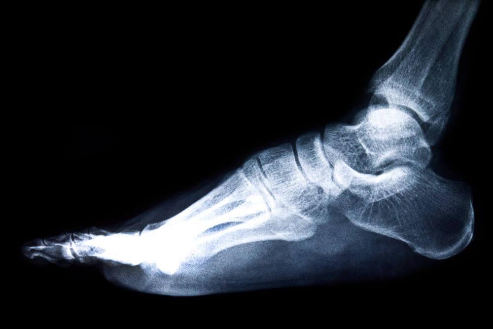 badanie komputerowe stopy
